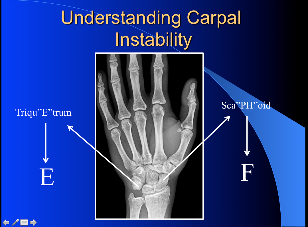 Understanding the carpal instability