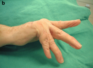 However, a sagittal band rupture is evident if patients are unable to actively extend their digits from a flexed position.