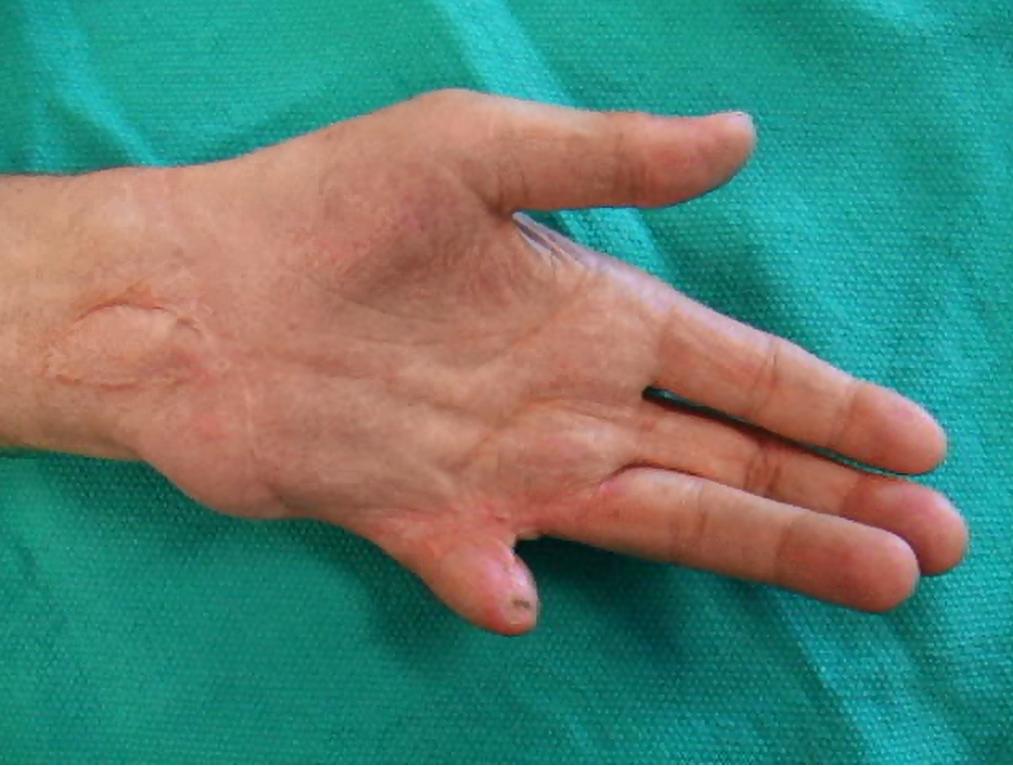 Functional Results following Mutilating Injuries