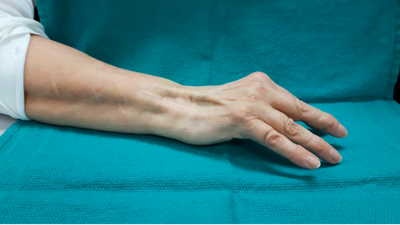 Swan Neck due to extensor retinaculum sacrifice