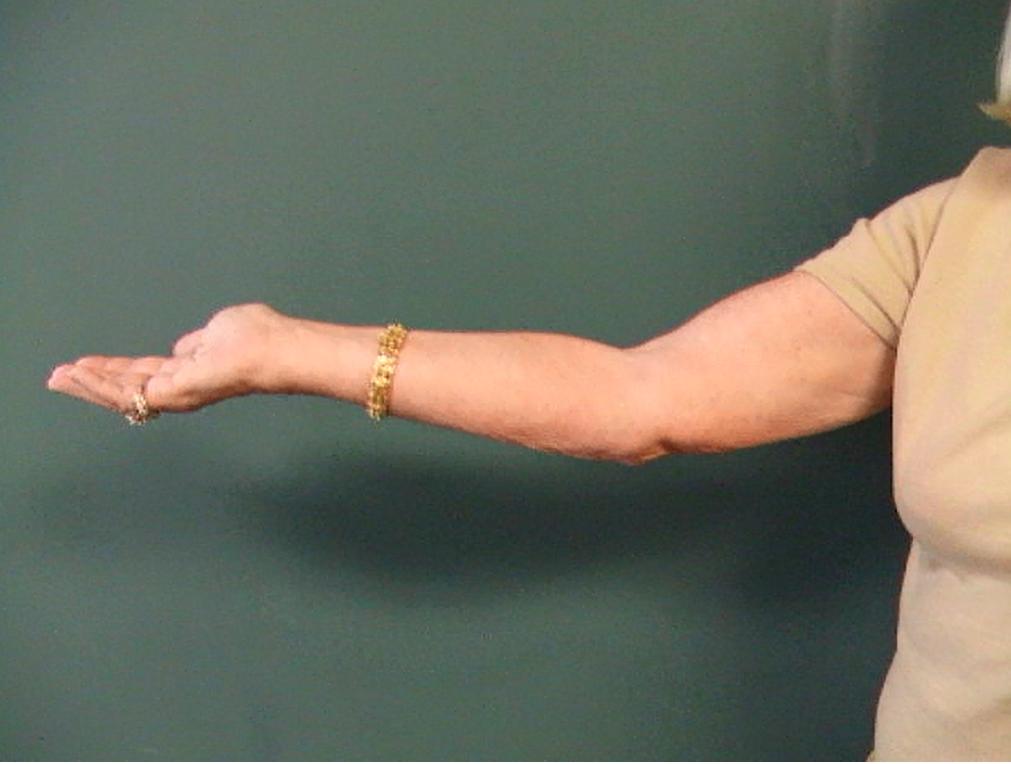 Elbow ROM