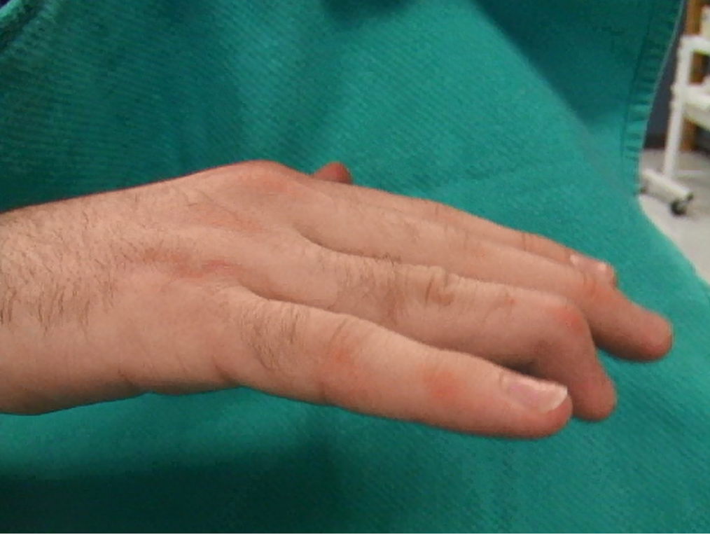 Swan Neck-DIP flexion Contracture