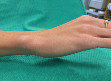in Midcarpal Instability a painful clunk is present while testing the wrist in pronation as compared to testing insupination